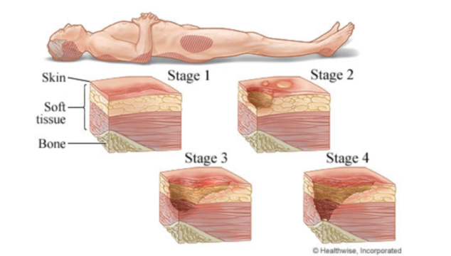 Staging of pressure sores, image by MyHealth.Alberta.ca